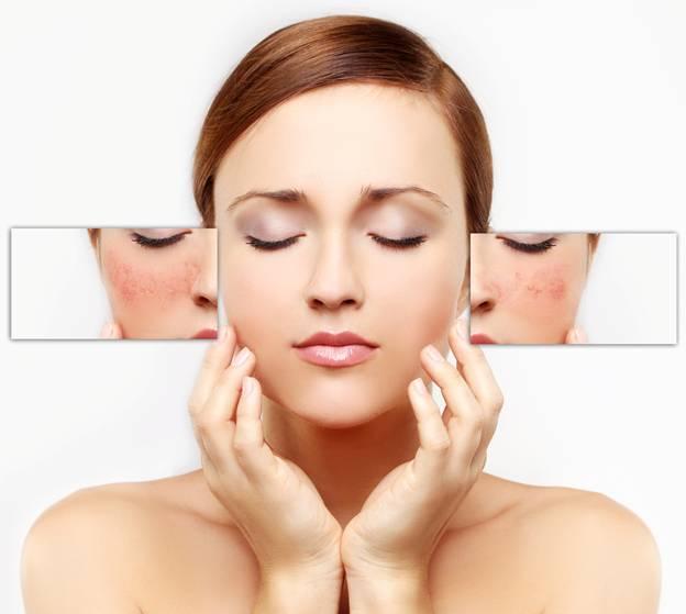 thay đổi nội tiết tố  dẫn đến nhiều tình trạng về da